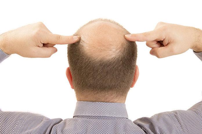 Co wiąże się z przeszczepem włosów?