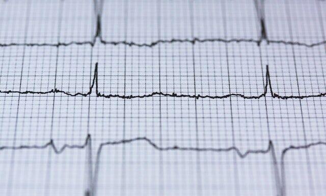 Jaki powinien być puls?